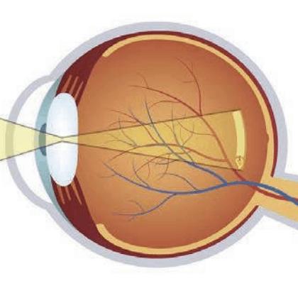 ablatio-retinae-icon
