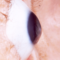 keratoconus-icon